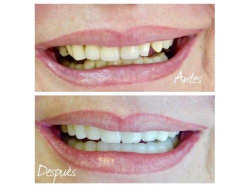Julio Pitarch Clínicas Dentales