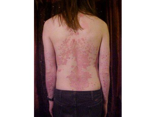 acupuntura y psoriasis