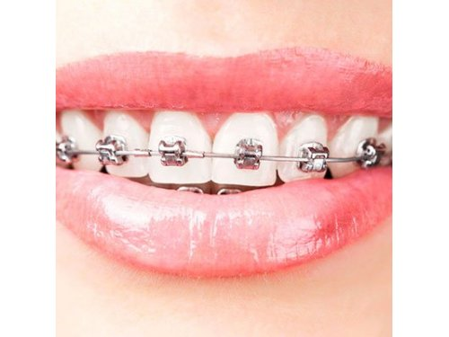 ILC Dental Requena