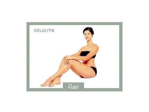 Mariela-Barroso-Medicina-Estetica-Celulitis