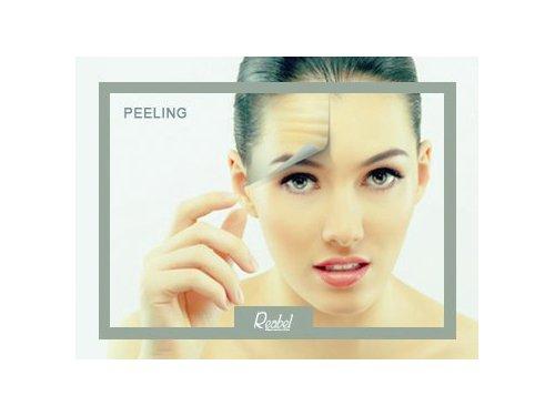 Mariela-Barroso-Medicina-Estetica-Peeling