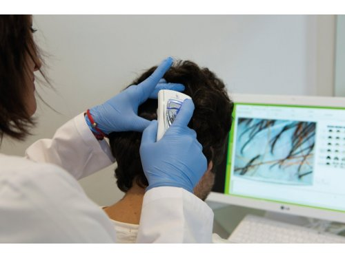 Análisis capilar y diagnóstico en Capilárea