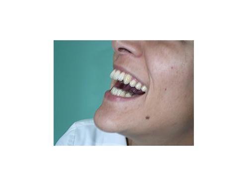 clinica_dental_dra_mercedes_rodriguez Una sonrisa para toda la vida